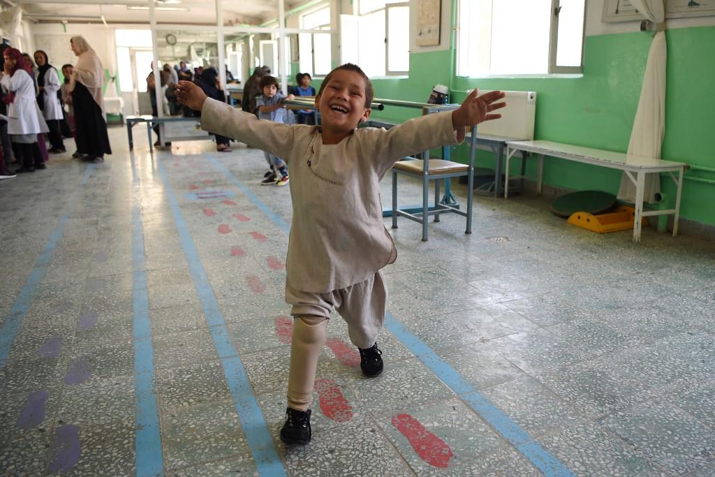 Niño que baila con su prótesis conmueve al mundo